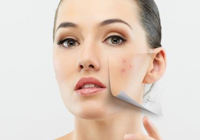 Can you prevent Acne Breakouts? What is your dermatologist Saying?