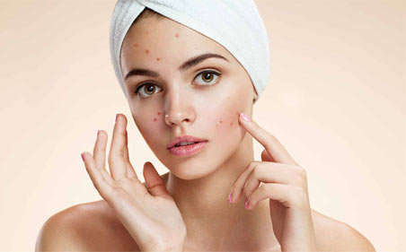 Understanding what you can do for acne