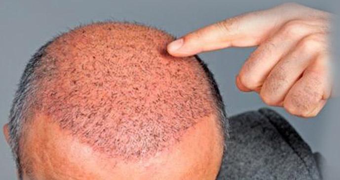 Hair Care Treatment Vasundhara To Restore Internal Balance